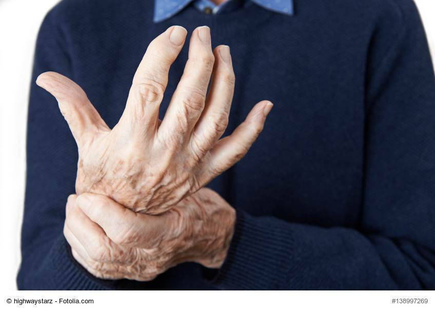 Medikamente gegen rheumatoide Arthritis unwirksam, aber es gibt Alternativen