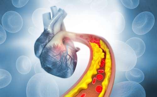 Cholesterinkontrolle