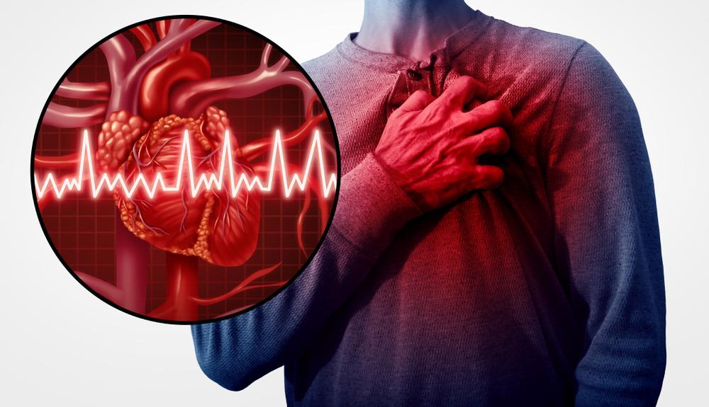 Leiden Sie unter diesem Herzinfarkt-Auslöser?