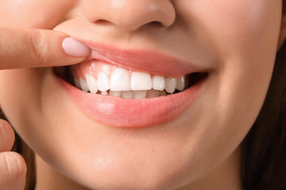 Schützen Sie Ihr Zahnfleisch mit diesem Lebensretter