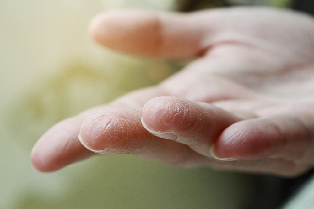 Die 7 besten Tipps bei trockener Haut