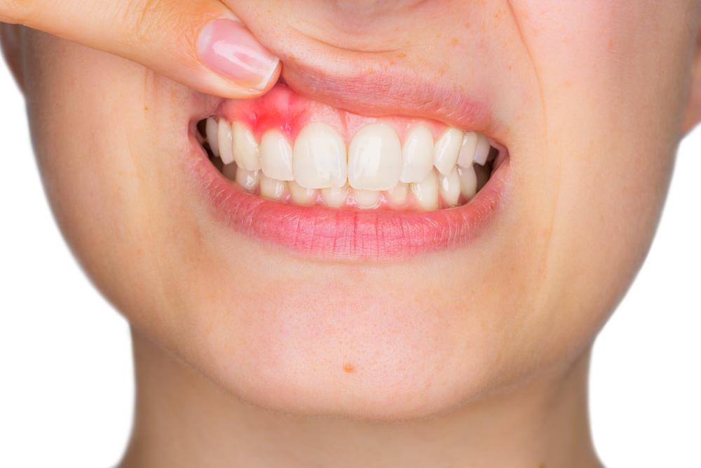 Wunder-Vitamin rettet Ihr Zahnfleisch