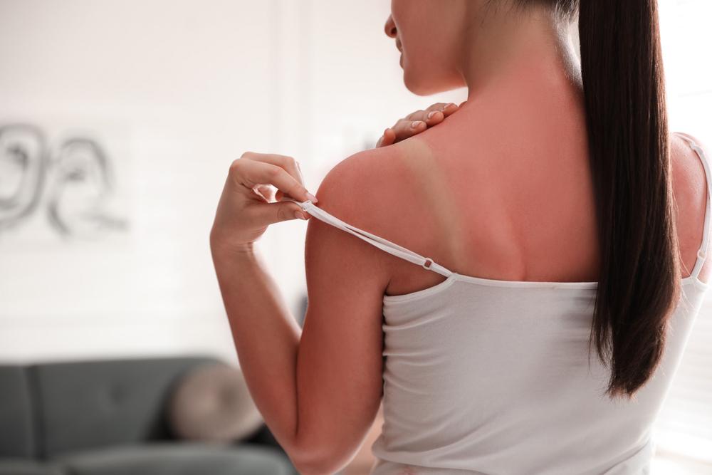6 leckere Geheimnisse, um Sonnenbrand zu vermeiden – hmmm!
